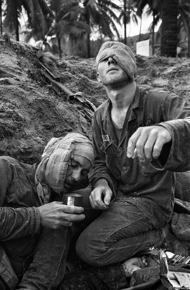 Bir muhabir için Vietnam Savaşı eşsizdi. Modern zamanların ilk sansürsüz savaşıydı. Gazeteciler ve foto muhabirlerinin hemen hemen hiç bir kısıtlamaya uğramaksızın savaş cephelerine girmelerine izin veriliyordu. Birinci Süvari Bölüğü'nden doktor Thomas Cole, bir gözü sarılı halde An Thi bölgesinde ABD askerleriyle Kuzey Vietnam-Vietkong ortak güçleri arasındaki çarpışmalarda yaralanan Çavuş Harrison Pell'i tedavi etmeyi sürdürüyor. (30 Ocak 1966)