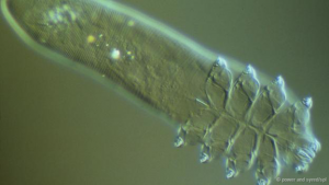 "A Demodex folliculorum under a light microscope ""Some people think they eat the bacteria that are associated with the skin,"" says Thoemmes. ""Some think they eat the dead skin cells. Some think they're eating the oil from the sebaceous gland."""