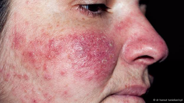 "Rosacea can lead to severe facial blemishes ""I would think that they're not harming us in a way that's detectable,"" says Thoemmes. ""If we were having a strong negative response to their presence, we'd be seeing that in a greater number of people."""