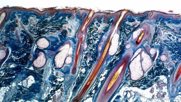 Human skin, with sebaceous glands attached to hair follicles