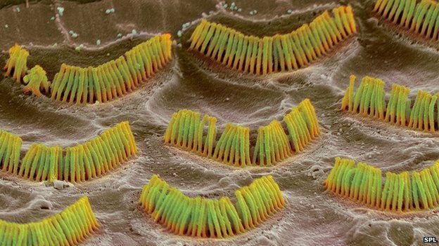 DNA'daki kimi değişimler bu tüyleri elektrik sinyali yaratamaz hale getiriyor ve sağırlık baş gösteriyor.