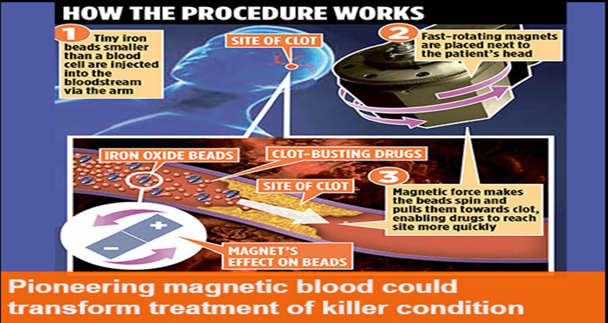 Stroke victims' new saviour: 'magnetic blood'