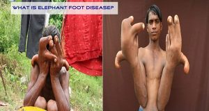 What İs Elephant Foot Diseasa? (Healt)