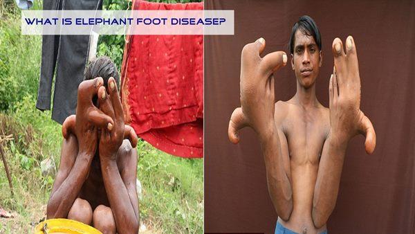 What İs Elephant Foot Diseasa? (Healt)