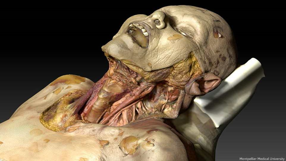University Creates Virtual Cadaver For Better Examinations - Video