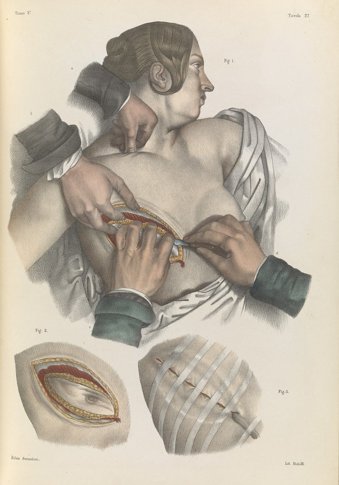 Gruesome images show the barbaric nature of 19th century surgery
