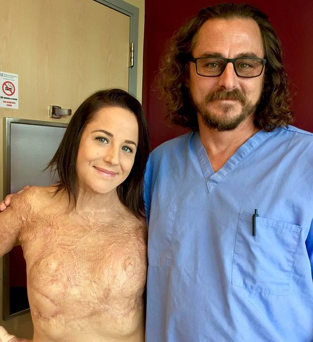 Video: Abuse victim learns to accept her scars after burning herself