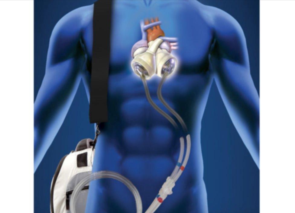 Dr. Dilek Gürsoy Yapay Kalpte Çığır Açmak İçin Çalışıyor