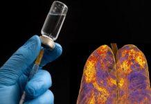 Koronavirüs: İlk Aşı Denemesi ABD'de Gerçekleştirildi
