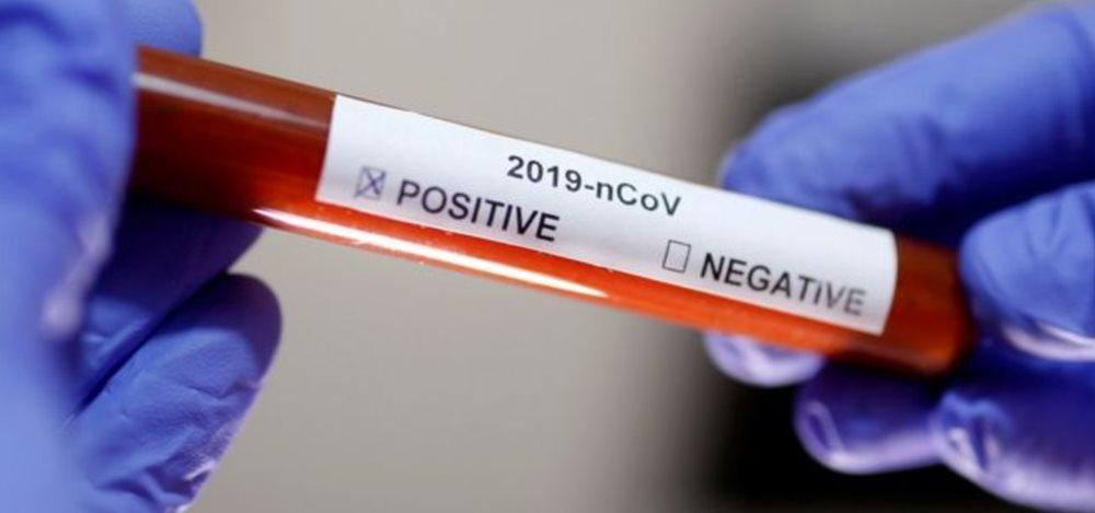 Koronavirüs: Koronavirüs rehberi Bilmeniz gerekenler sayfada