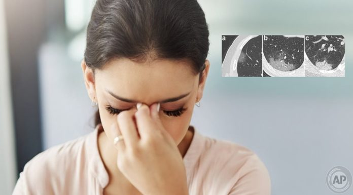 Prof. Dr. Karadaş: Koronavirüs baş ağrısı normal baş ağrısından farklı