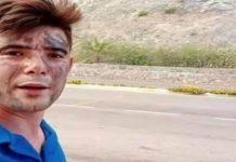 Marmaris'te itfaiyecilere içme suyu taşıyan Şahin Akdemir motosikleti devrilince alevler arasında kaldı